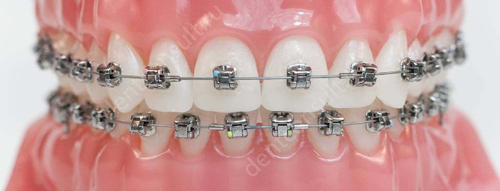 пластинка для зубов perfect smile