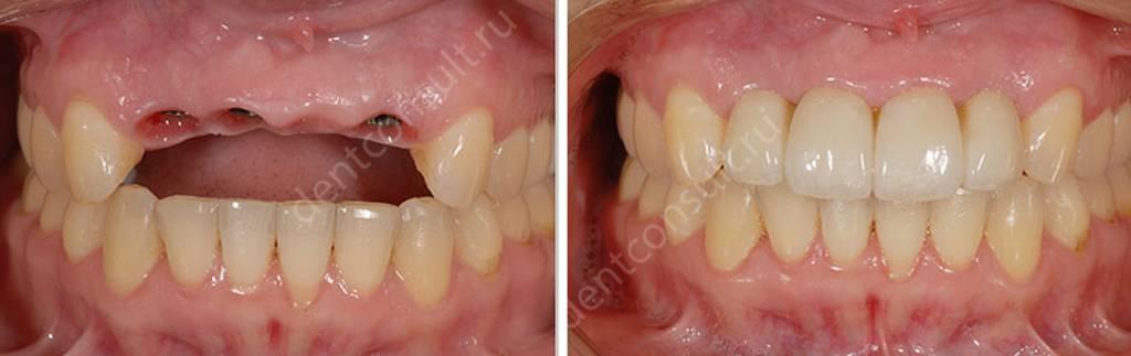 Фото до и после имплантации зубов