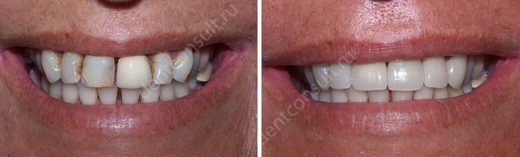 Фото до и после установки коронок из циркония