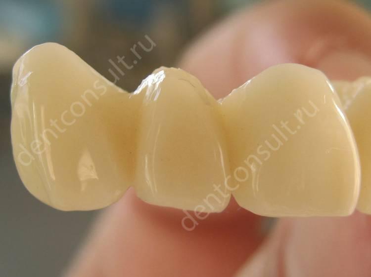 Пластмассовые коронки и зубные протезы