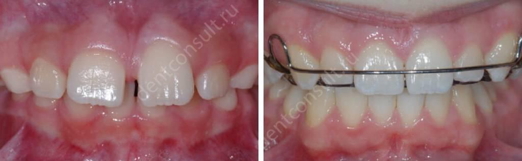 Фото: зубы до и после лечения
