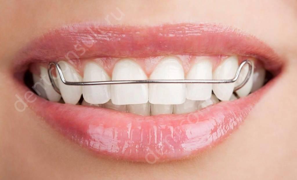 Скобы на зубы - что это и для чего они нужны