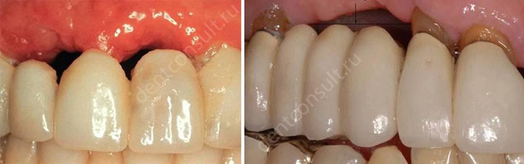 Атрофия кости под зубным мостом