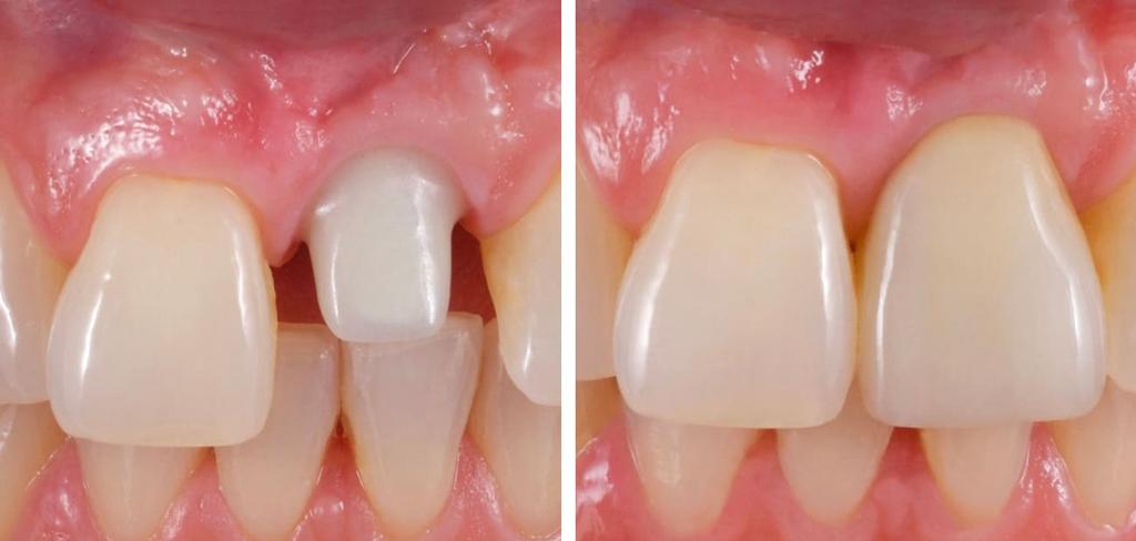 На фото продемонстрирован зуб, восстановленный при помощи коронки