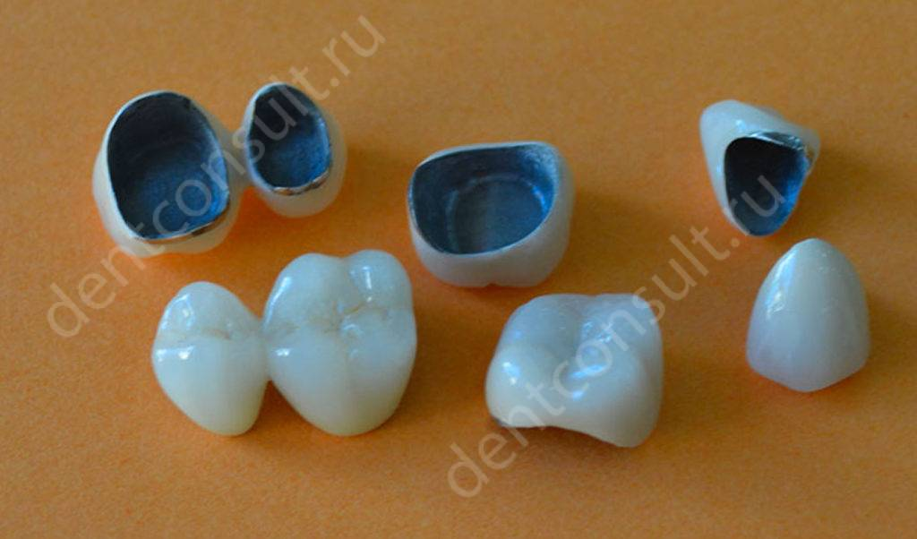 Цельнолитые зубные коронки – их фото, преимущества и недостатки
