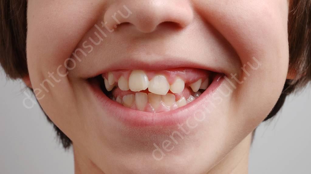дефекты зубочелюстной системы