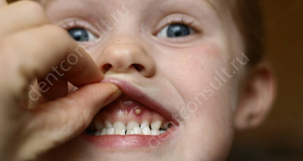 На фото показан периодонтит у ребенка