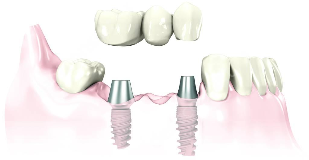 восстановление сегмента жевательных зубов
