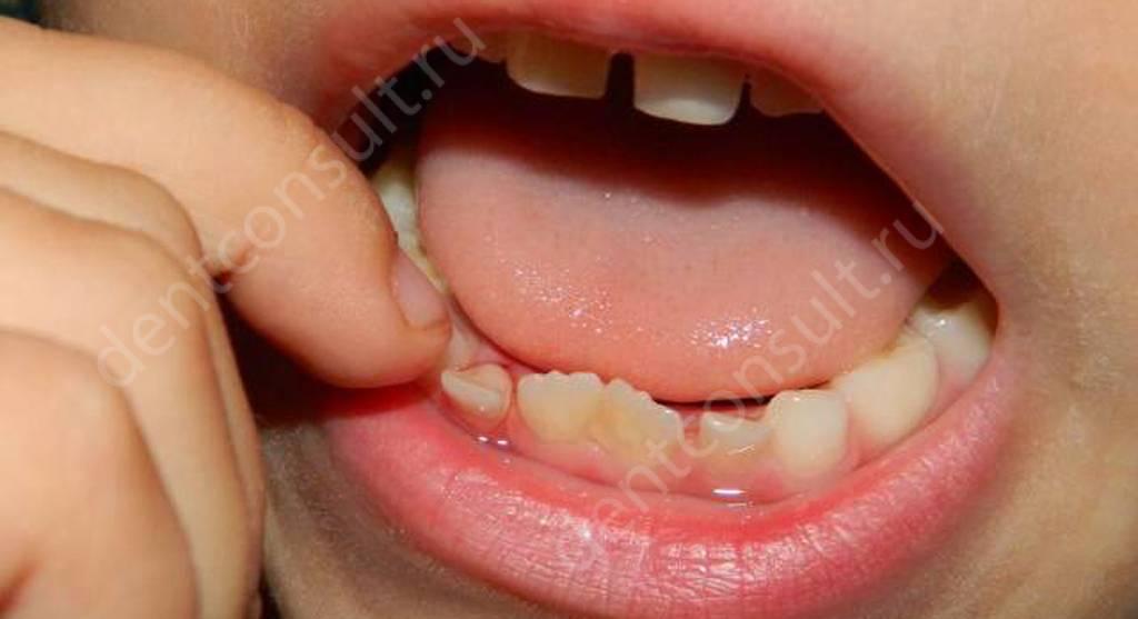 шатание зуба - возможный признак заболевания