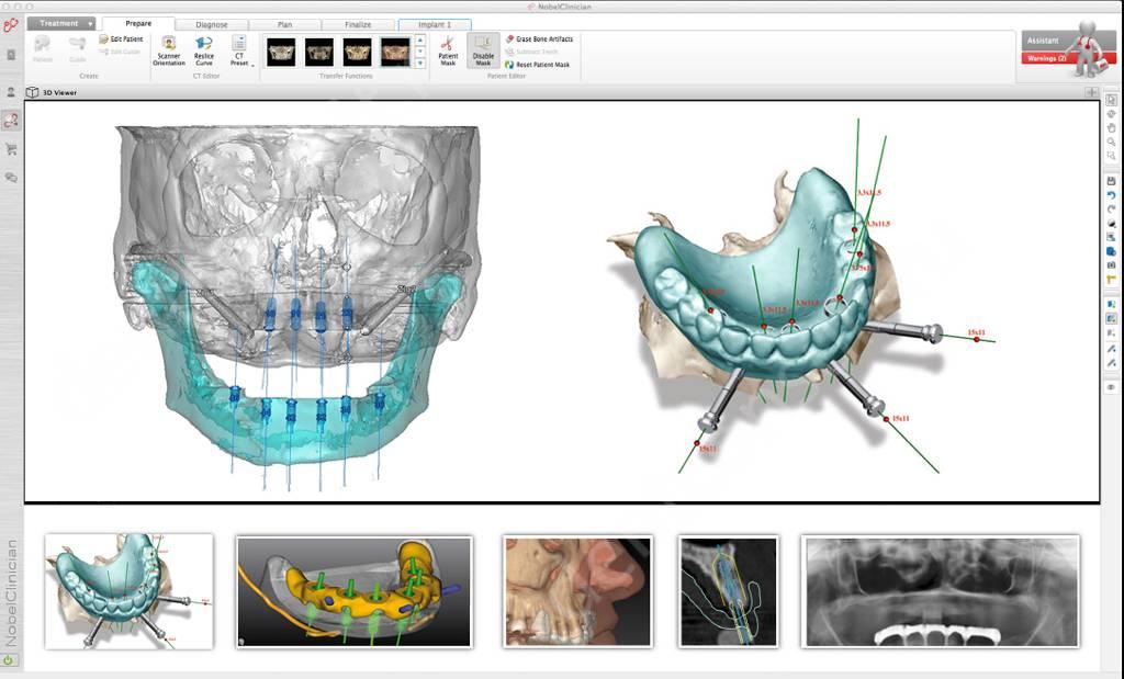 3D моделирование процесса лечения
