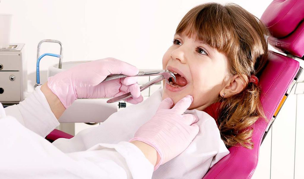 На фото изображено удаление молочного зуба щипцами