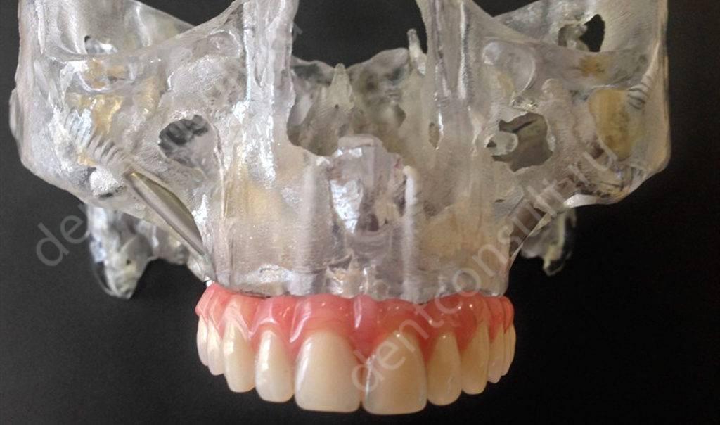 Пример скуловой имплантации