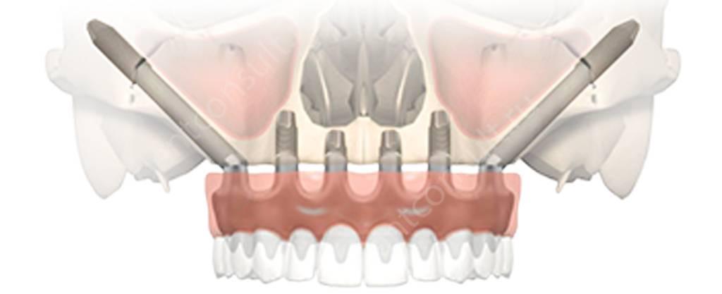 На фото показана схема имплантации по протоколу All-on-6 с применением скуловых имплантов Zygoma