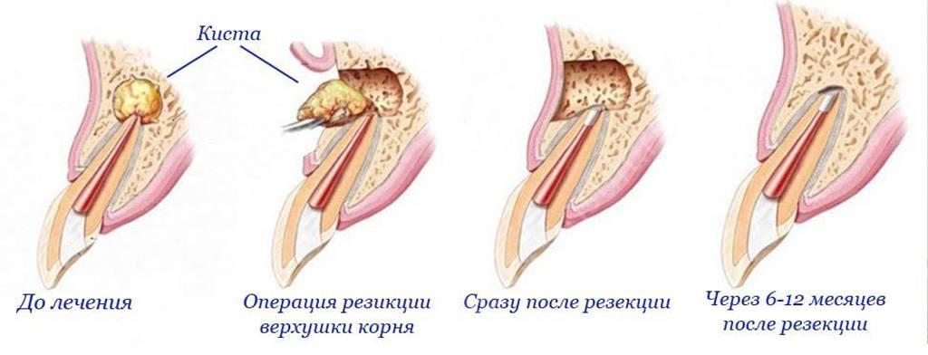 цистэктомия