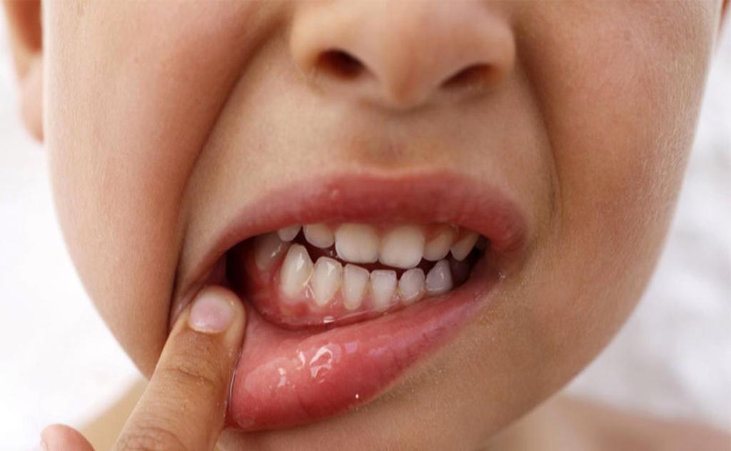 Как лечить гингивит у взрослых и детей в домашних условиях