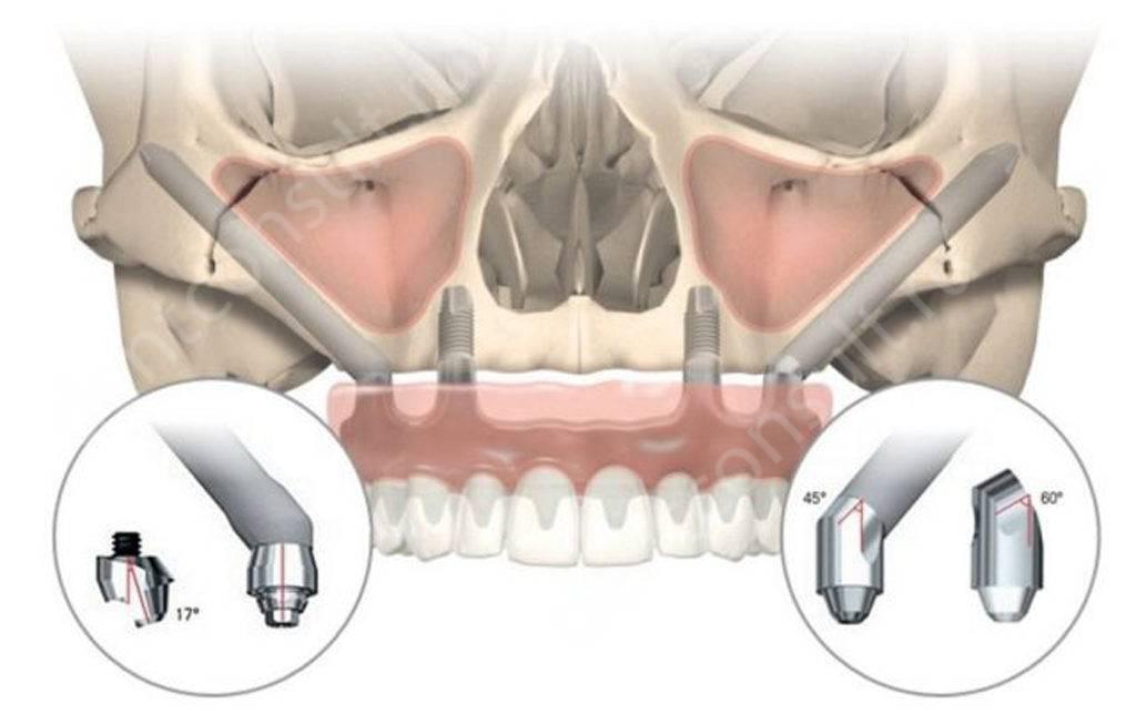 На фото скуловые импланты Zygoma