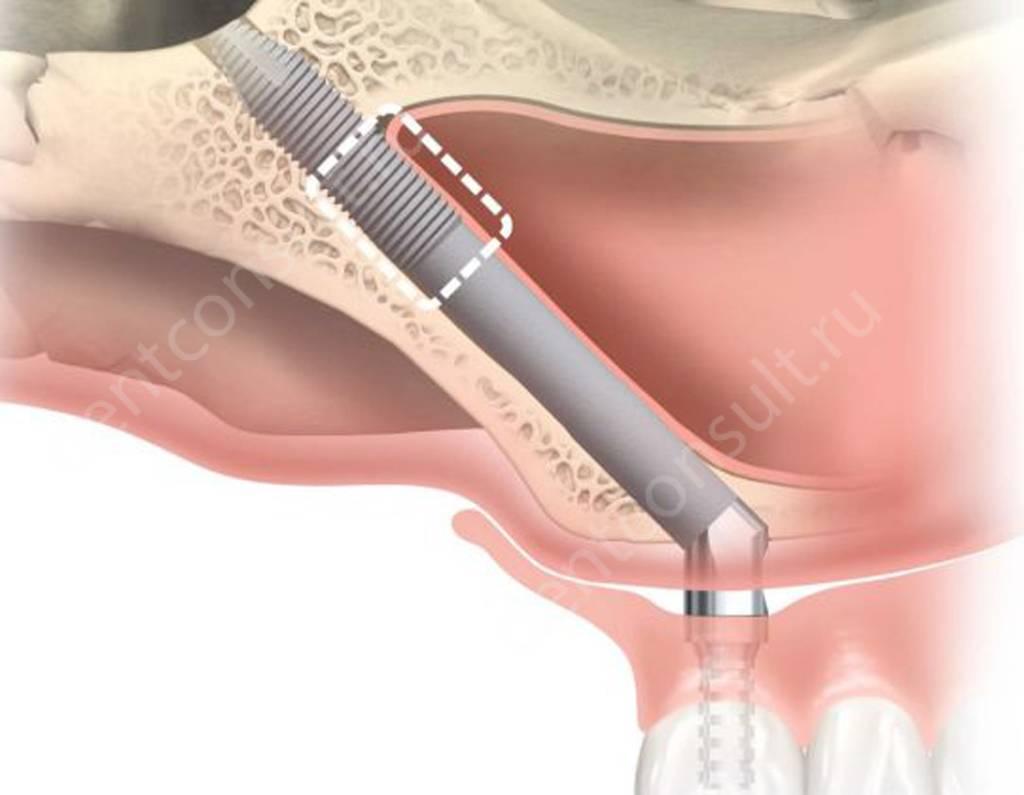 Скуловый имплант zygoma