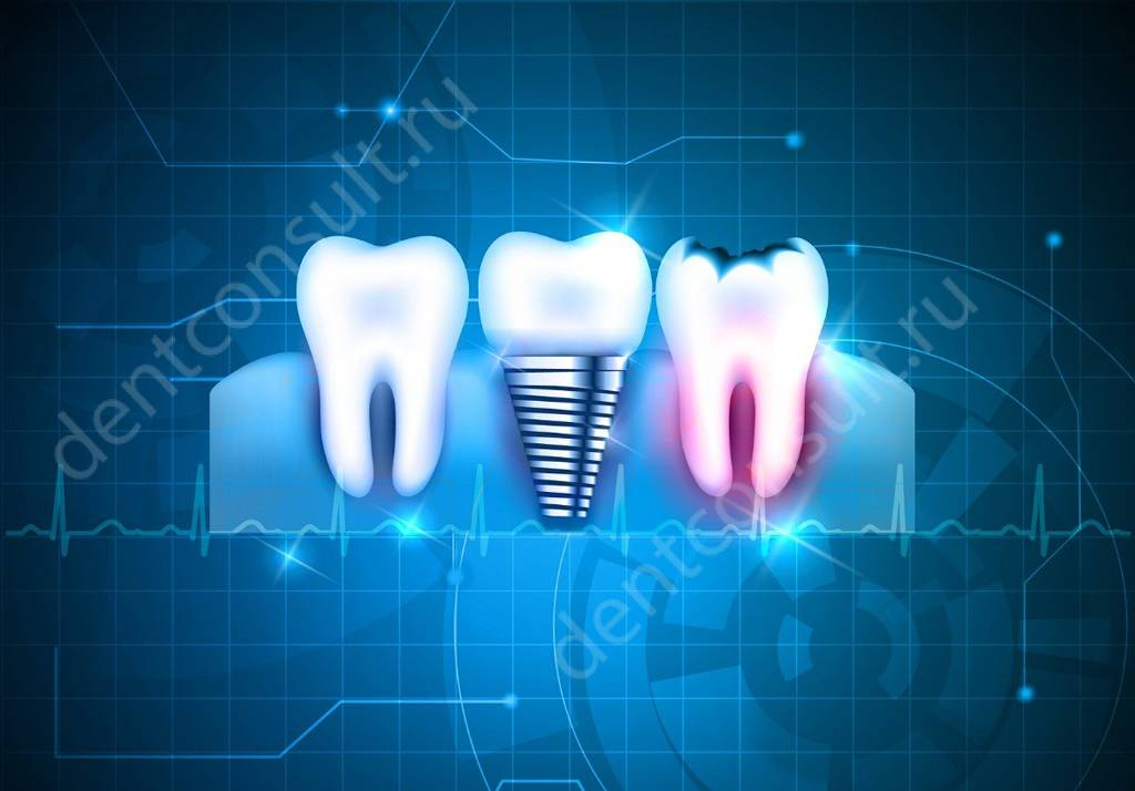 Обзор современных технологий имплантации зубов 2018