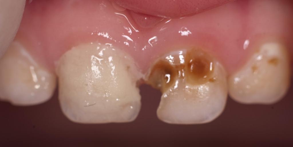 Молочные зубы больше подвержены поражению кариесом, чем постоянные