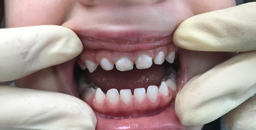 Зубной налет налет может перерасти в камень