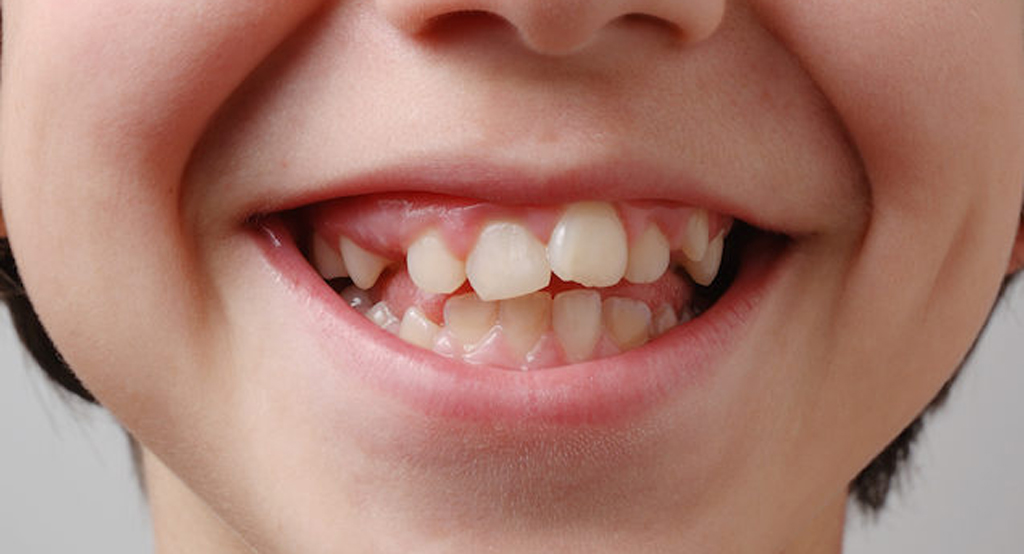 Раннее удаление молочных зубов - одна из причин неправильного прикуса