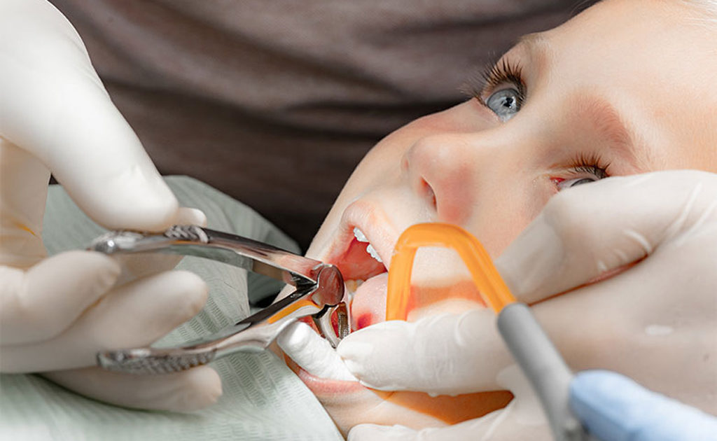 Удаление зуба щипцами