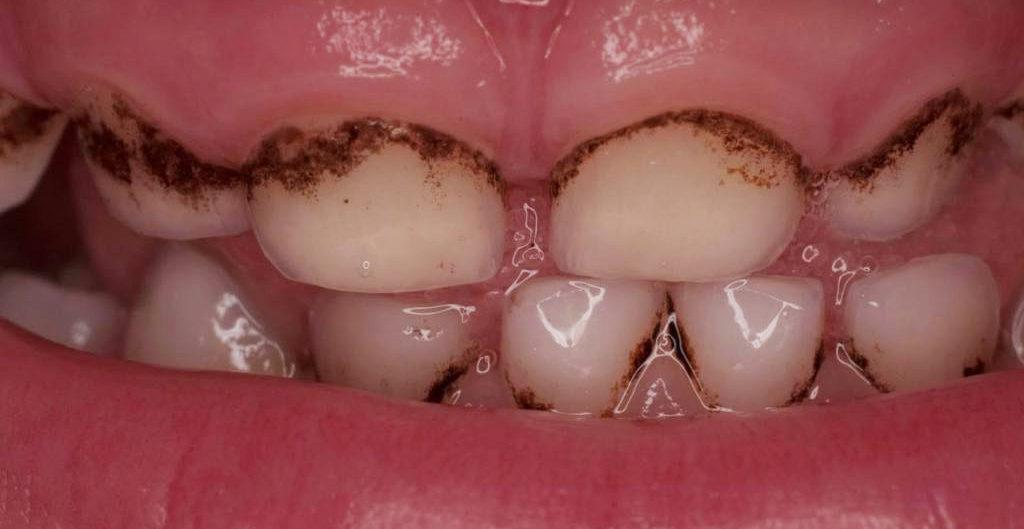 Так выглядит зубной налет у ребенка
