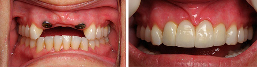 Классическая имплантация - фото до и после