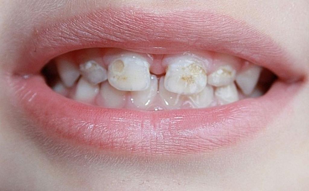 На фото показана патология эмали зубов