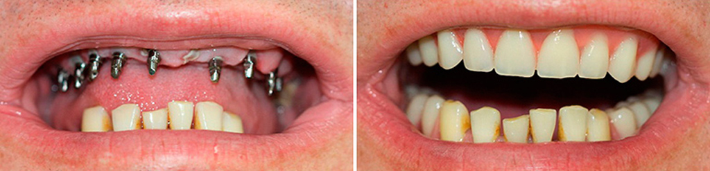 Базальные импланты ставятся размещаются равномерно по всему зубному ряду