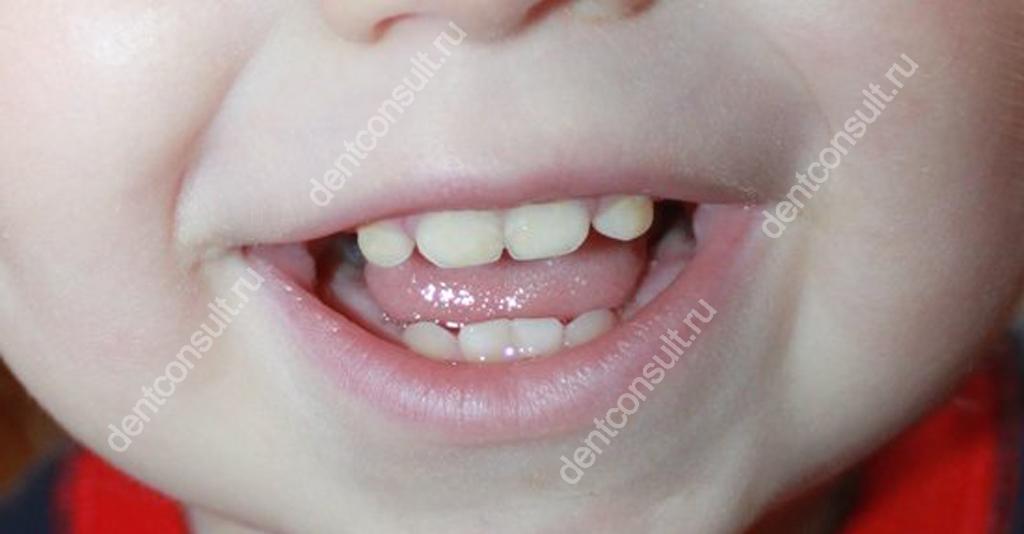 На фото показаны зубы ребенка в возрасте 1 года