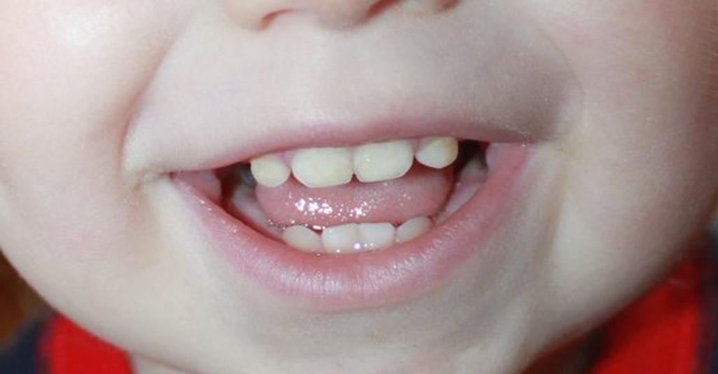 На фото показаны зубы ребенка до года