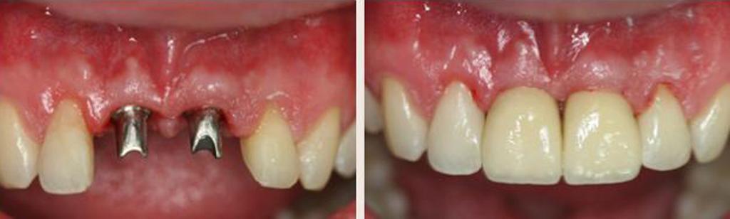 Фото до и после установки имплантов