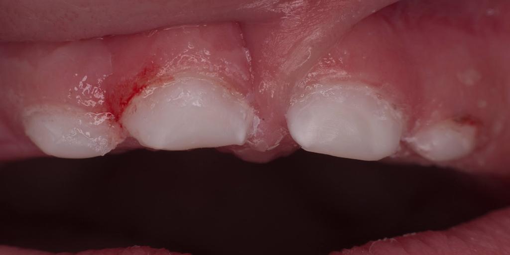 Болезнь может проявится на первых зубах
