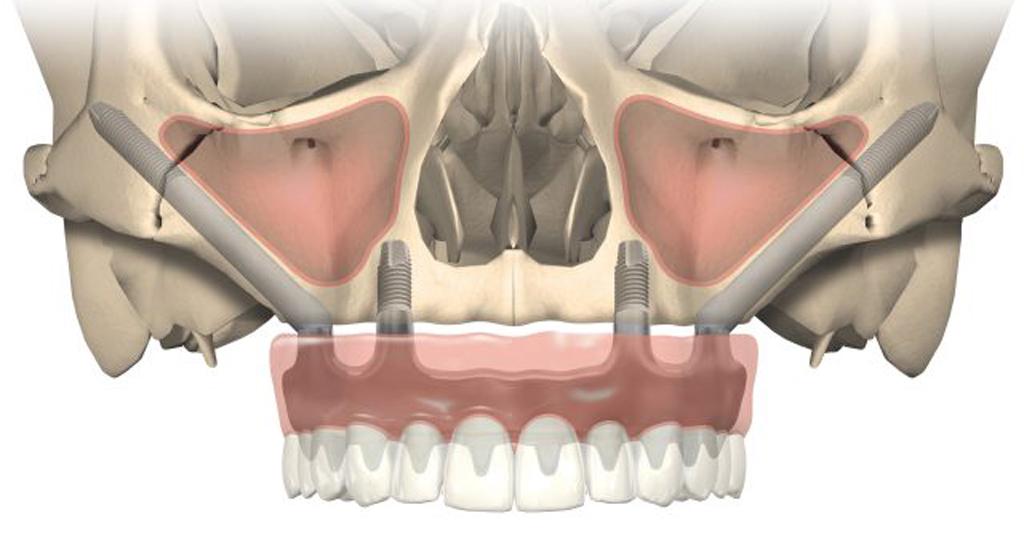 На фото изображен пример скуловой имплантации