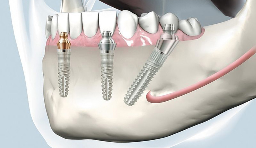 При одноэтапной имплантации устанавливаются импланты под наклоном