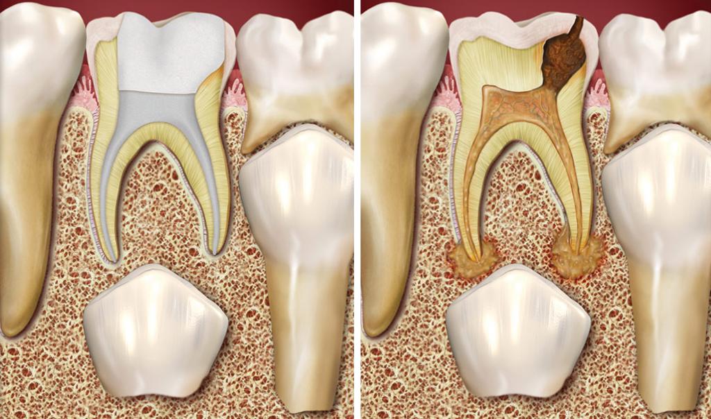 Если не лечить временные зубы, они могут стать причиной повреждения постоянных