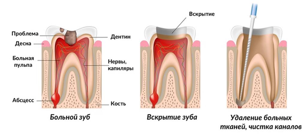 Процесс лечения зубов