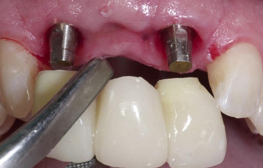 На фото показана установка постоянного протеза на импланты