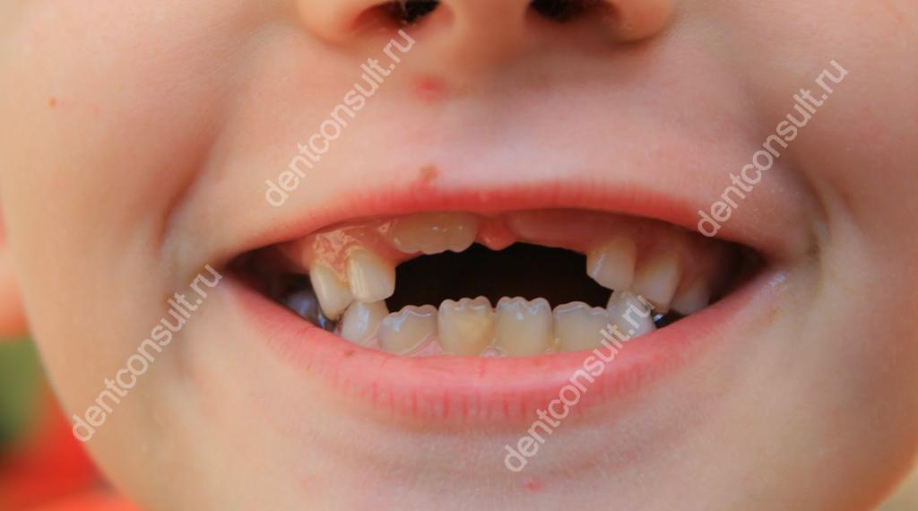На фото показано прорезывание постоянных зубов