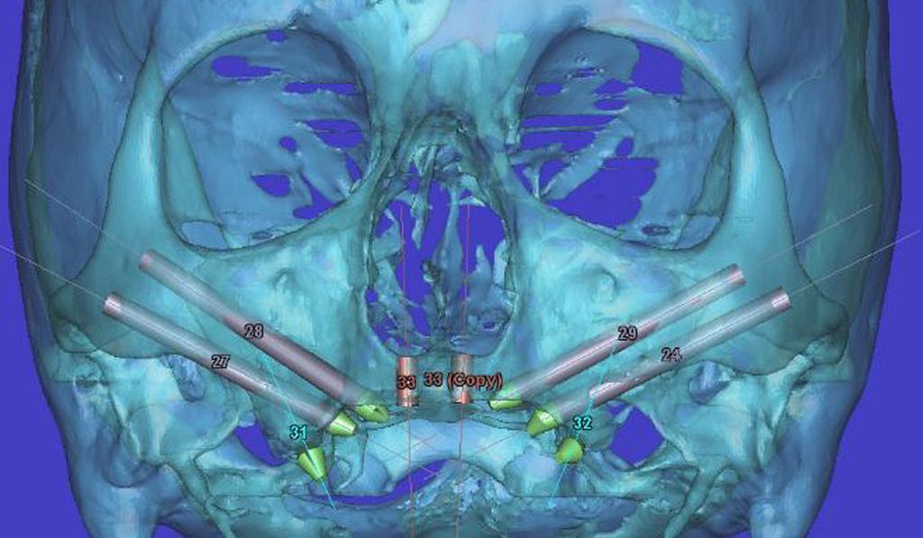 На фото показано моделирование скуловых имплантов при атрофии верхней челюсти