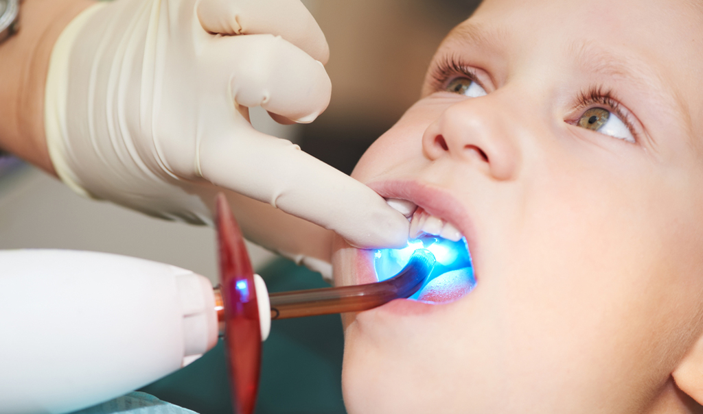 Так проходит пломбирование зубов у ребенка светоотражающими композитами
