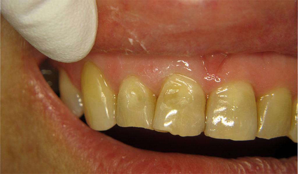 На фото показана эрозия зубной эмали