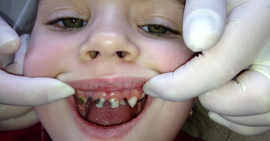 Черные зубы выглядят довольно не эстетично и могут привести к комплексам у ребенка