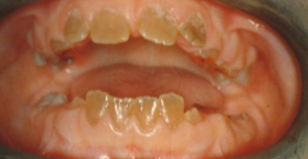 Так выглядят тетрациклиновые детские зубы