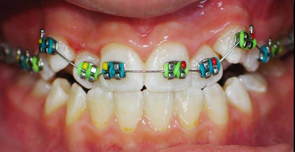 Брекеты помогут исправить прикус без удаления зубов