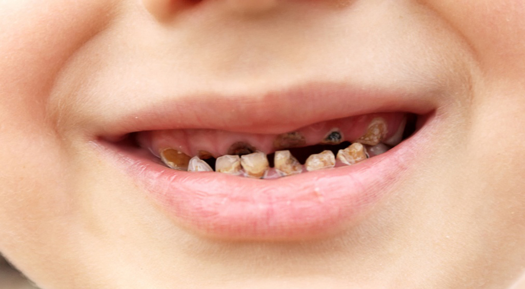 На фото показано гнилостное поражение зубов у ребенка