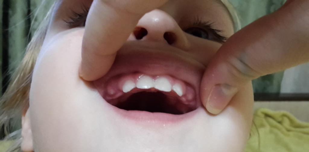 Прорезывание клыков у ребенка сопровождается постоянным дискомфортом и болью
