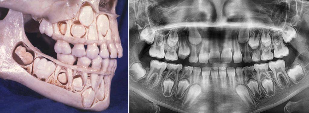 На фото показаны молочные зубы