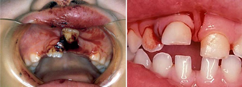 На фото показана подвижность зуба при ушибе